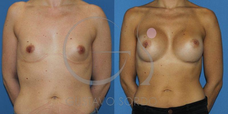 Aumento de pecho en mujer de 28 años. Prótesis anatómicas