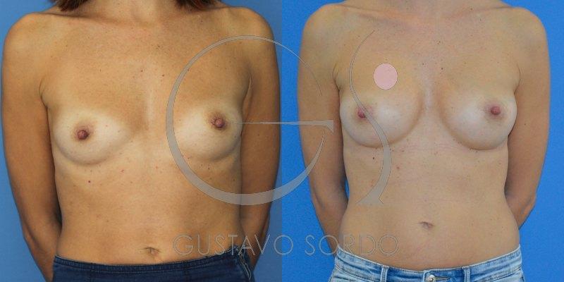 Aumento de pecho mujer de 40 años con prótesis anatómicas de 330cc [FOTOS]