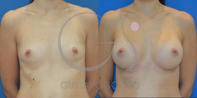 Aumento de pecho con prótesis anatómicas de 375cc: Fotos antes y después