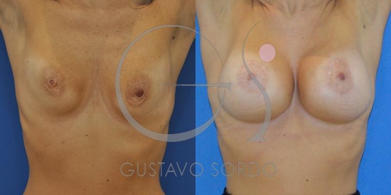 Mastopexia periareolar en mujer de 42 años con descolgamiento moderado