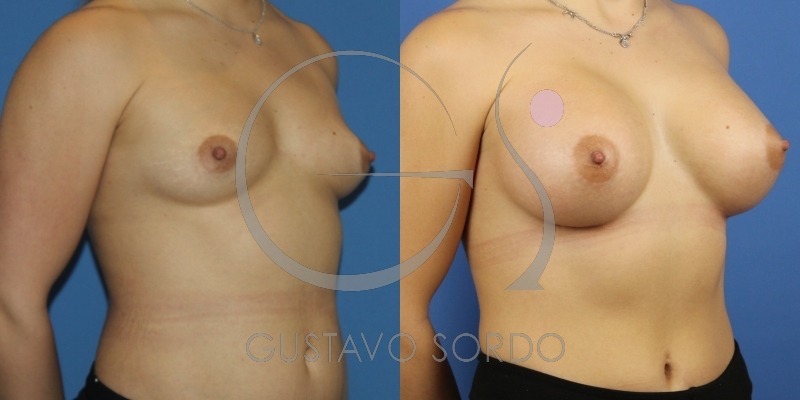 Aumento de pecho significativo con prótesis de 390cc anatómicas