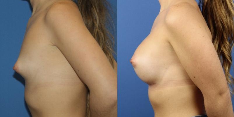 Paciente de 20 años con mamas tuberosas. Aumento de pecho