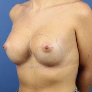 Después del aumento de pecho en mamas tuberosas.