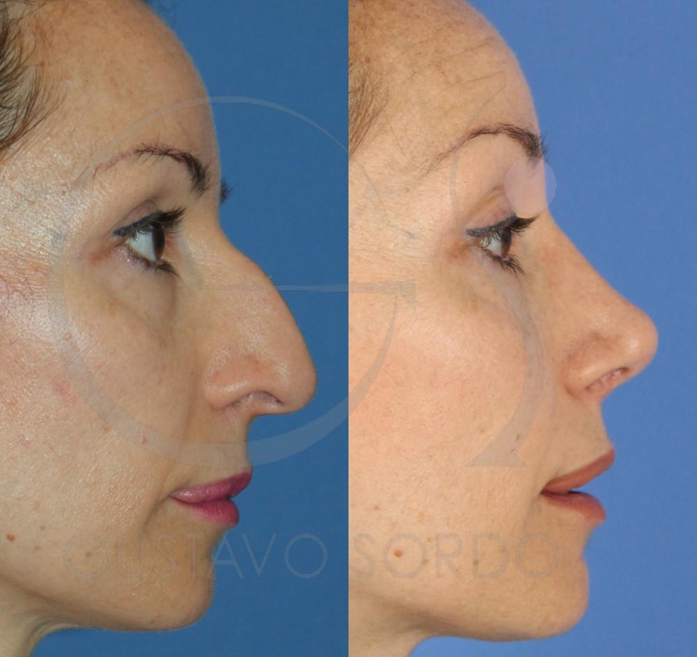 Reducción de nariz con rinoplastia ultrasónica. Perfil