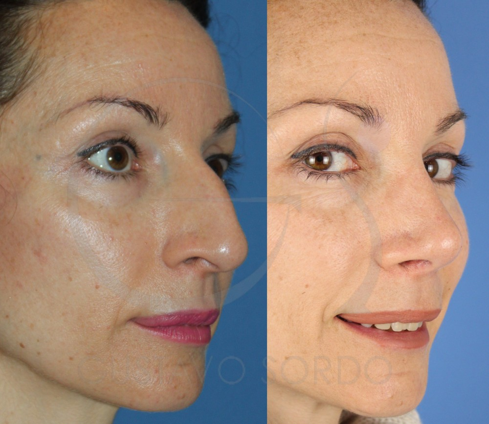 Reducción de nariz con rinoplastia ultrasónica. Semiperfil