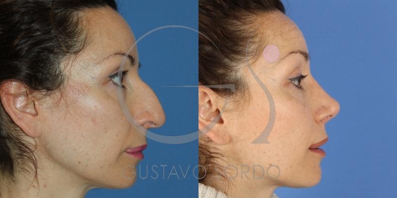 Reducción de nariz con rinoplastia ultrasónica