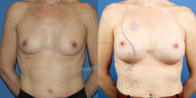 Aumento de pecho en mujer de 46 años con anatómicas de 295cc