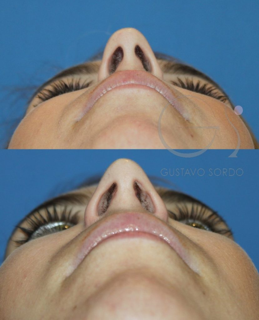 Rinoplastia para corregir la nariz desviada y la respiración