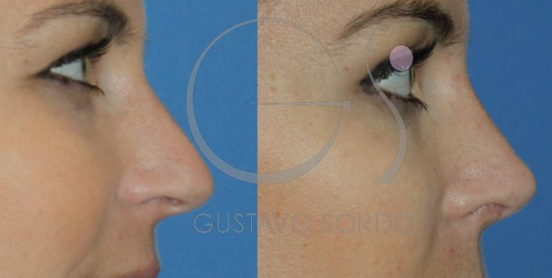 Rinoplastia para corregir nariz desviada y respiración