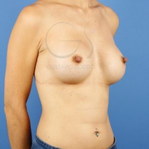 Después del aumento de pecho en mujer delgada.
