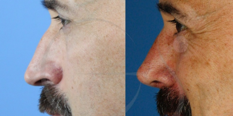 Paciente con pseudo-caballete y piel fina. Rinoplastia ultrasónica