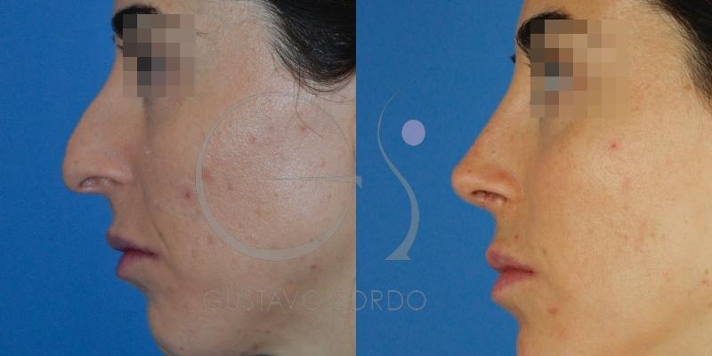 Rinoplastia ultrasónica y eliminación de acné