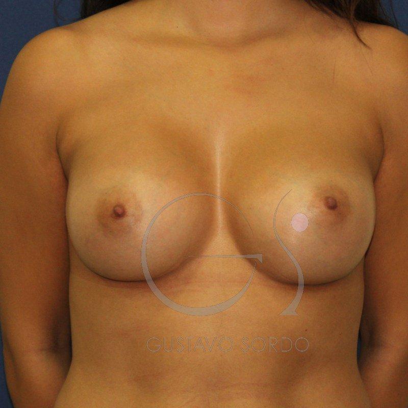 asimetría de mama cirugía plástica