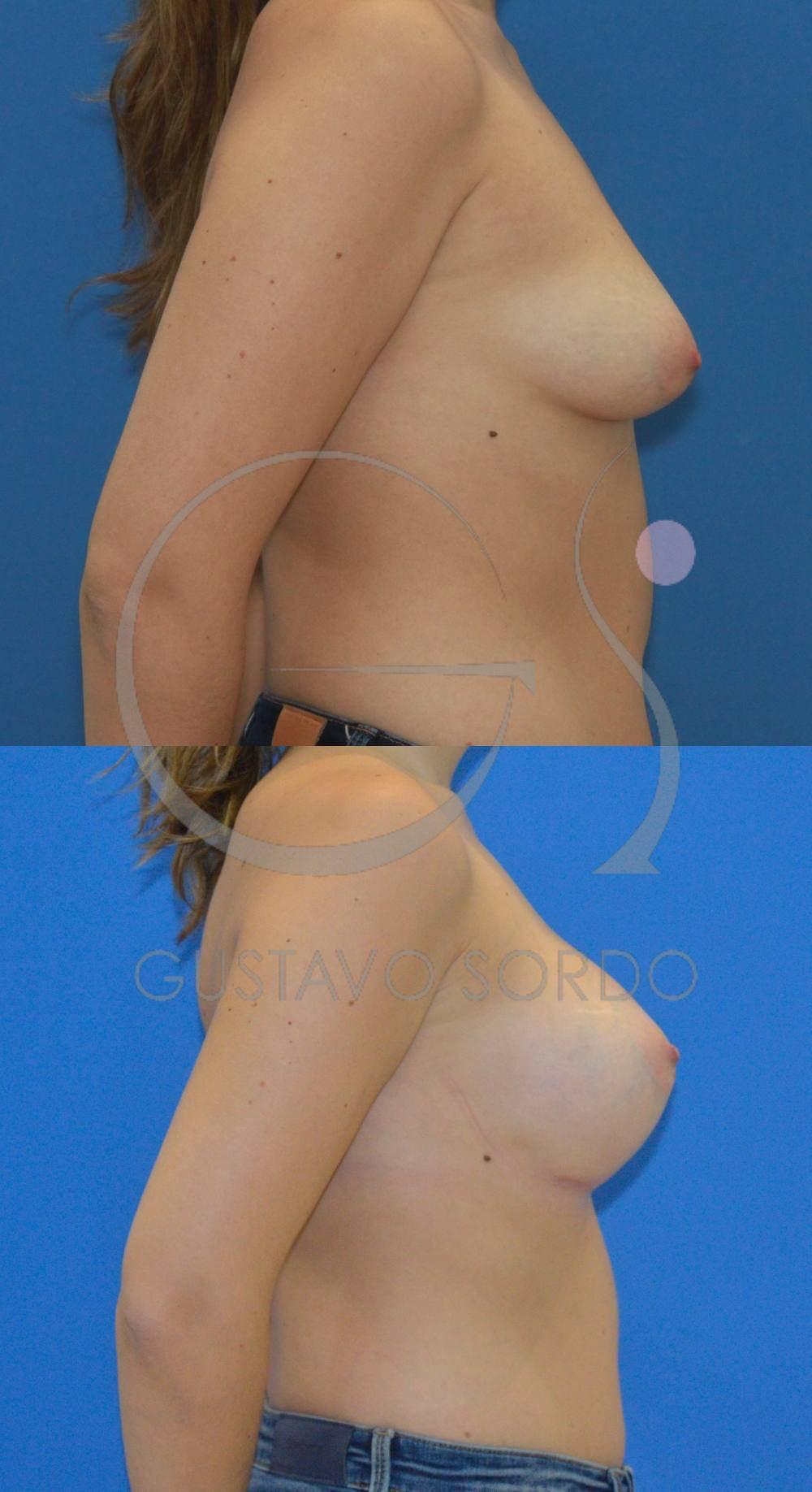 Mamas tuberosas corregidas sin mastopexia. Fotos perfil derecho