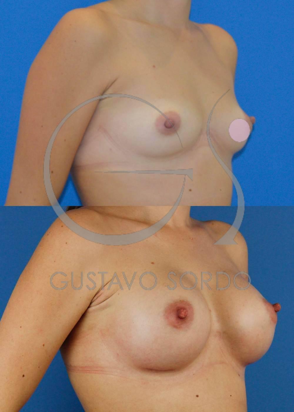 Aumento mamario con implantes de 330cc