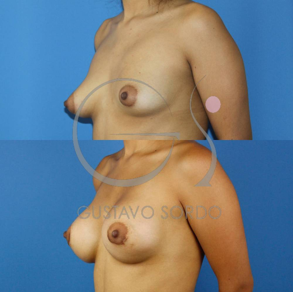 Mamas tuberosas de grado 3. Aumento mamas vía areolar. SemiPerfil izquierdo