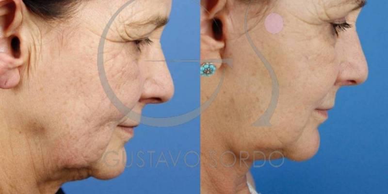 Rejuvenecimiento facial con lifting frontal y cervicofacial [FOTOS]
