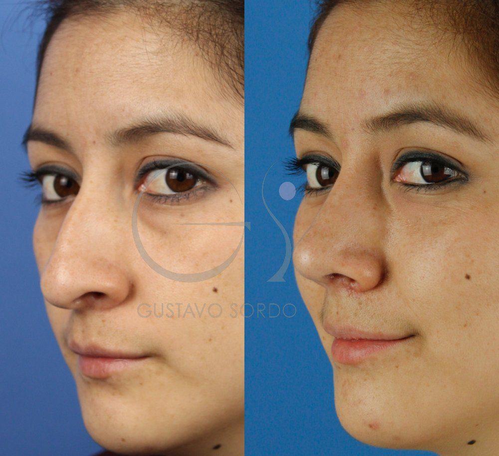 Resultado de la rinoplastia ultrasónica al mes de la cirugía. SemiPerfil.