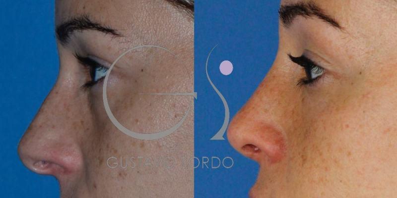 Rinoplastia Funcional y Estética. Fotos antes y después