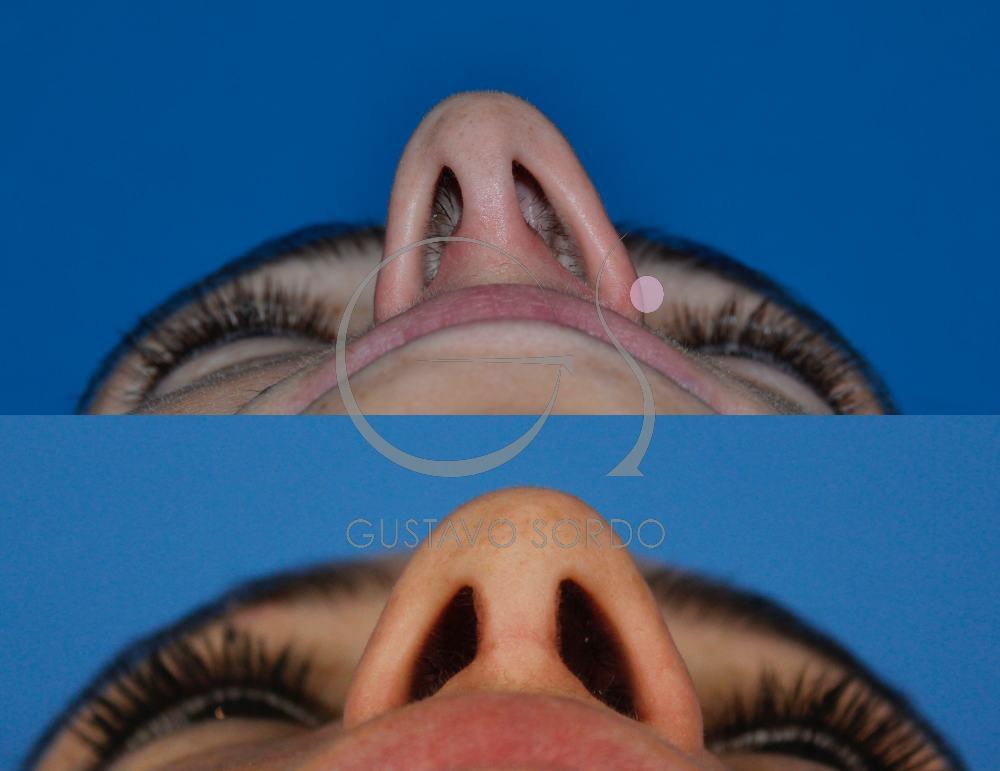 Rinoplastia funcional y Estética. Detalle fosas nasales