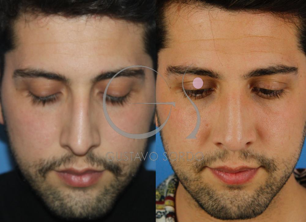 Rinoplastia masculina. Resultado al año