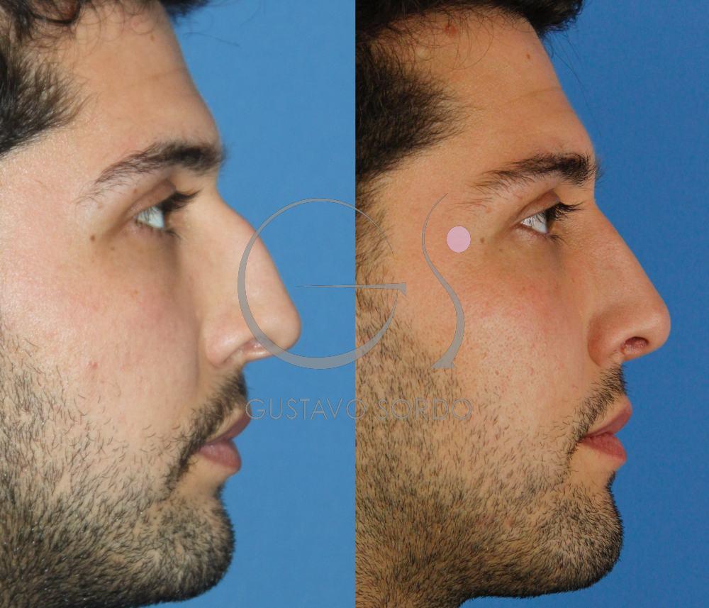 Rinoplastia masculina. Resultado al año. Perfil
