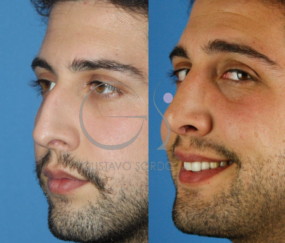 Rinoplastia masculina. Resultado al año. Semiperfil