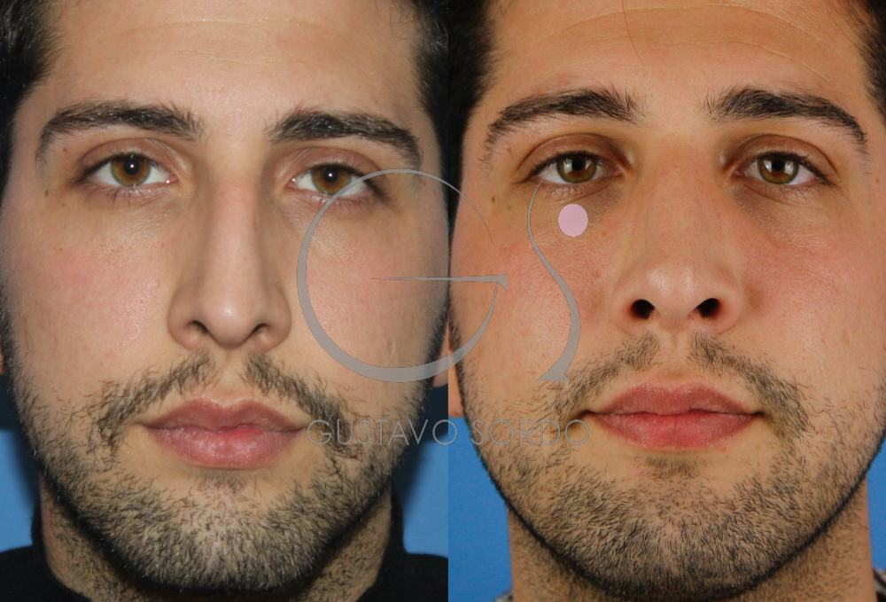Rinoplastia masculina. Resultado al año. Frente