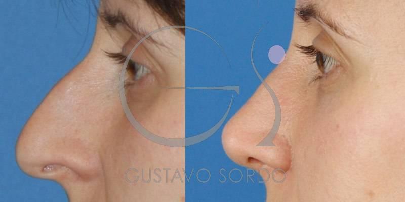 Rinoplastia Ultrasónica en mujer de 30 años. Fotos antes y después.
