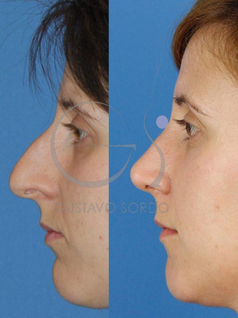 Rinoplastia Ultrasónica en mujer de 30 años. Fotos perfil.
