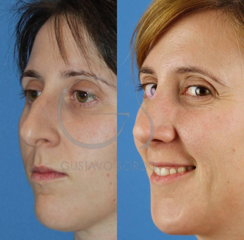 Rinoplastia Ultrasónica en mujer de 30 años. Fotos semiperfil.