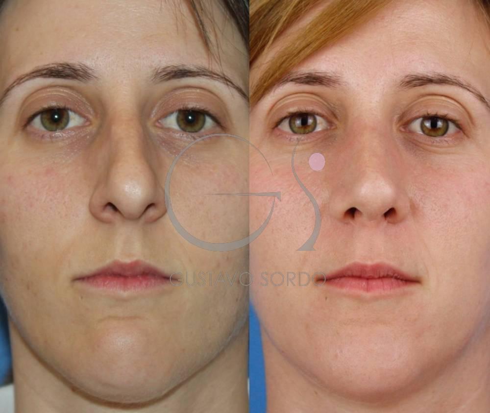 Rinoplastia Ultrasónica en mujer de 30 años. Fotos frente.