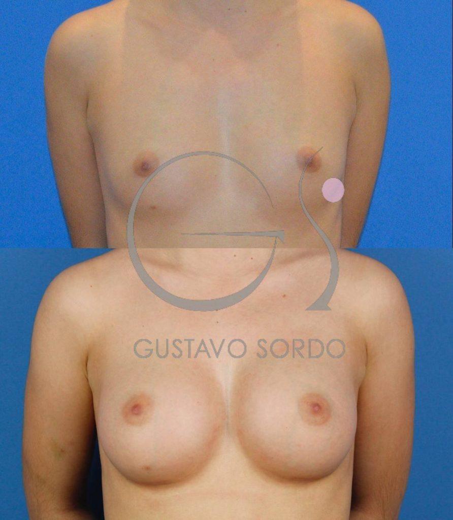 Implantes anatómicos de 255cc. Aumento Mamario