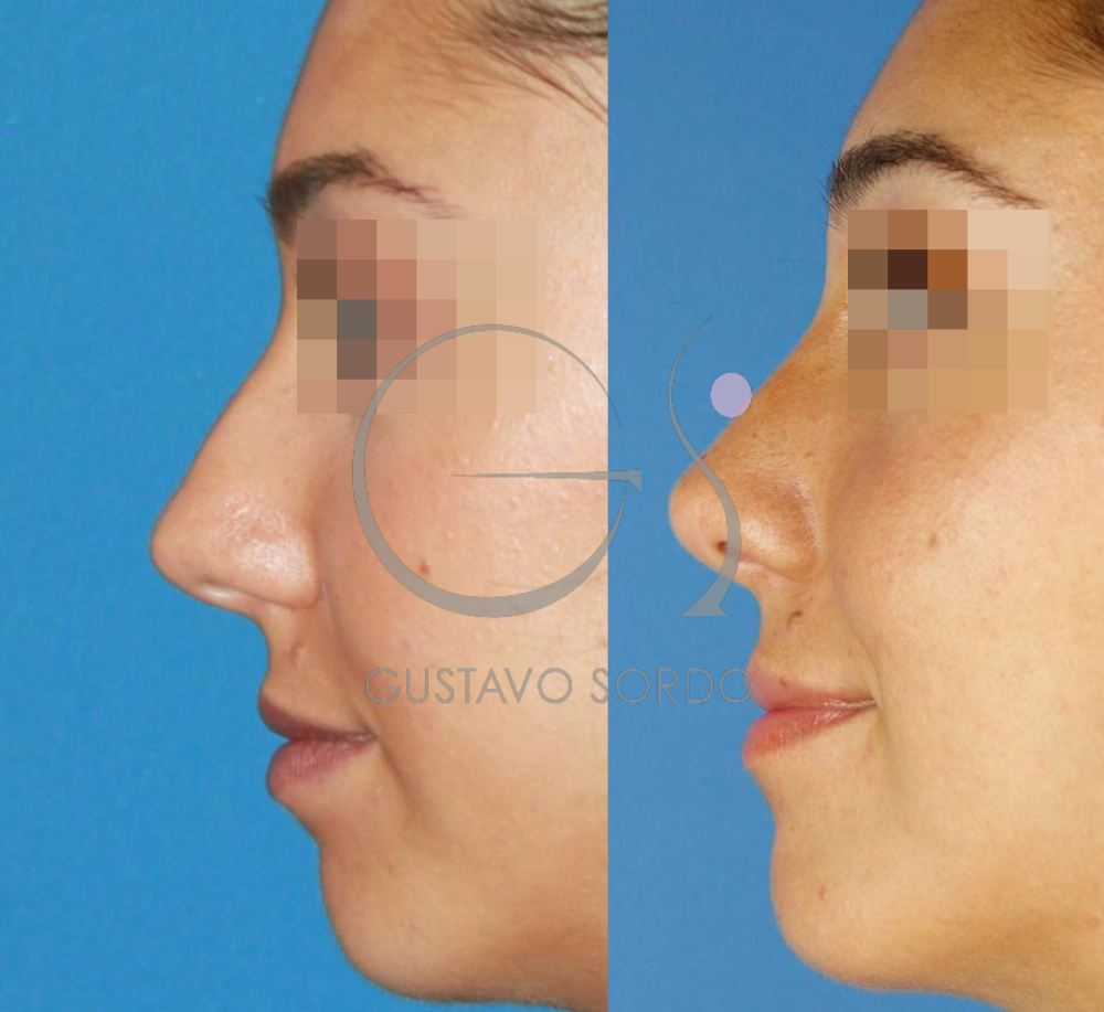 Operación de nariz al año. Resultado Perfil