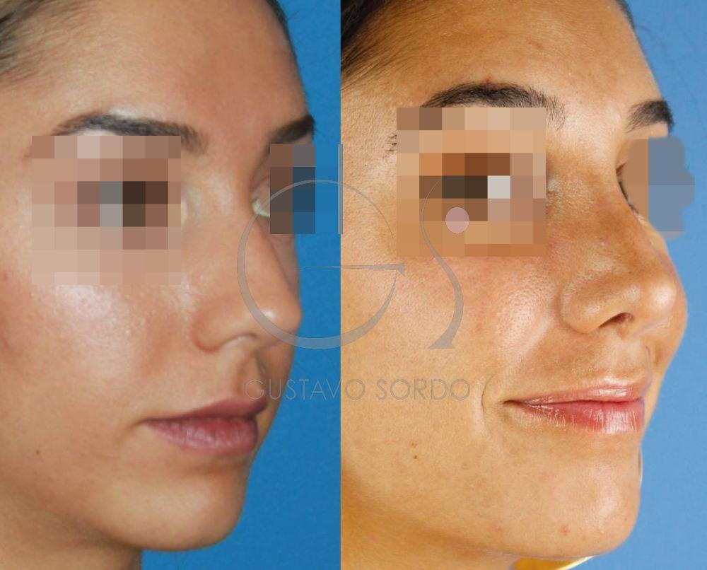 Operación de nariz al año. Resultado SemiPerfil