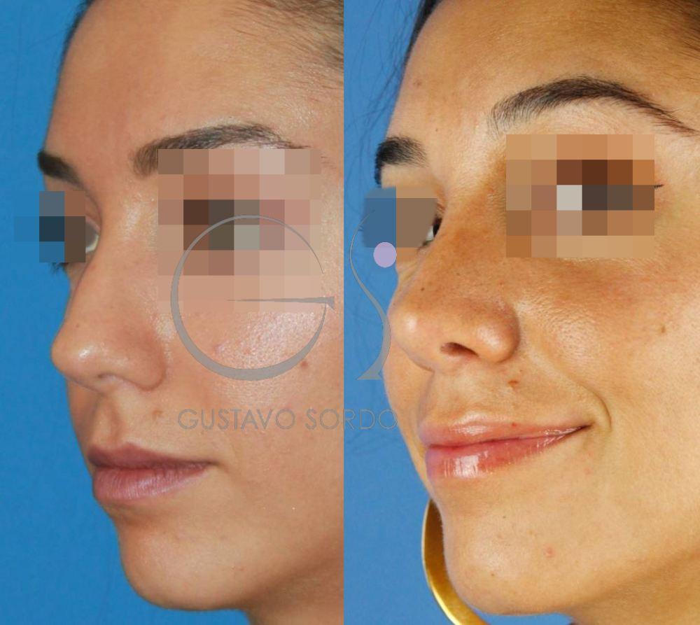 Operación de nariz al año. Resultado SemiPerfil Izquierdo
