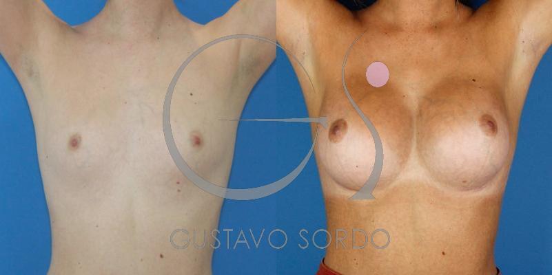 Aumento mamario con Prótesis de 395cc y 350cc [FOTOS]