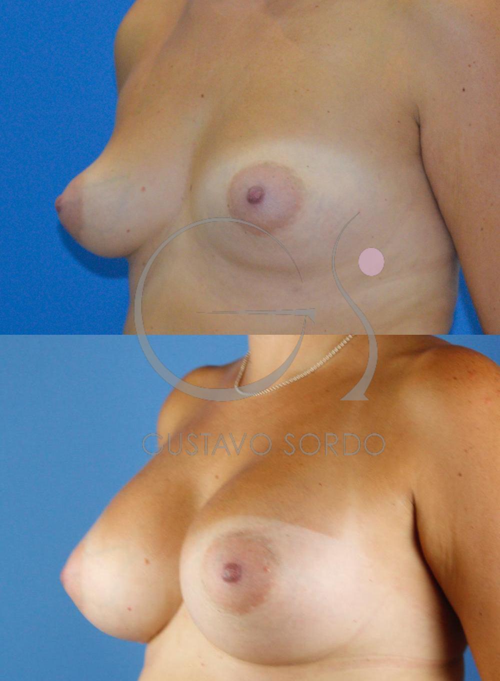 Corrección asimetría mamaria y mama tuberosa. Semiperfil