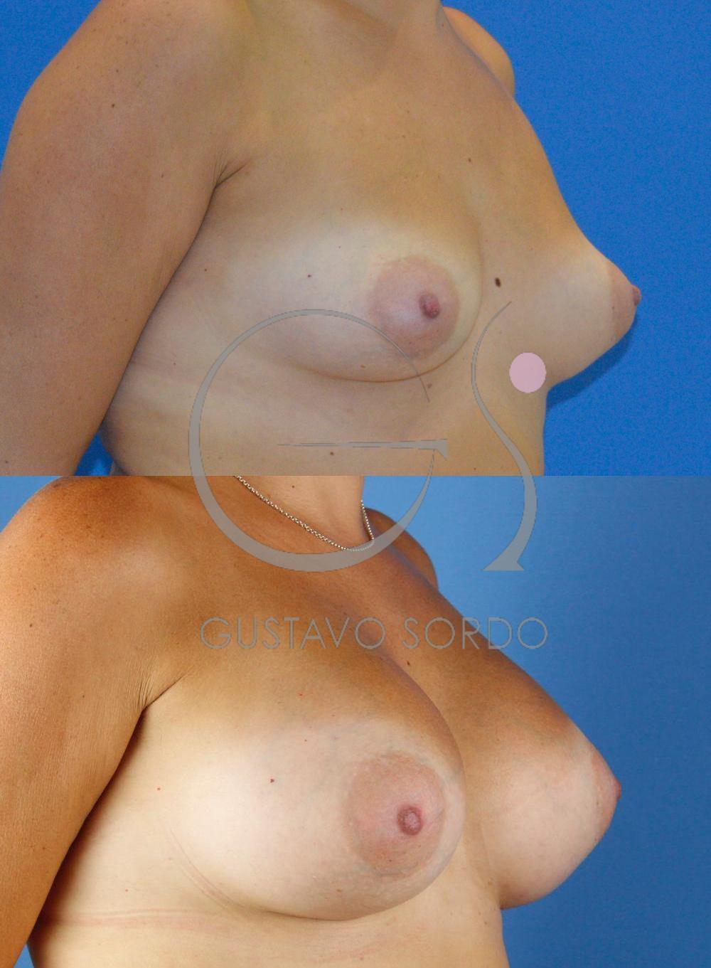 Corrección asimetría mamaria y mama tuberosa. Semiperfil derecho