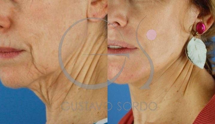 Lifting cervicofacial labios dermabrasión
