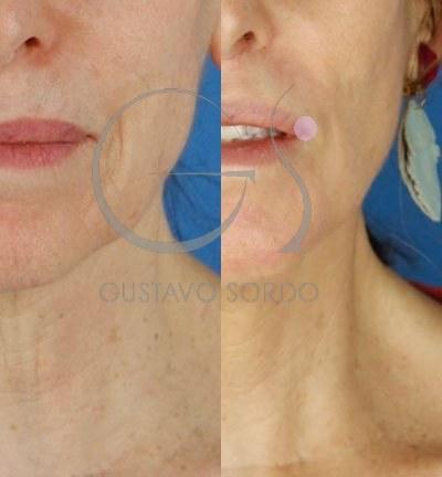 Lifting cervicofacial labios dermabrasión. Detalle contorno