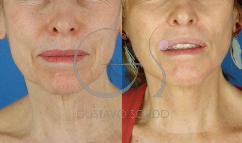 Lifting cervicofacial labios dermabrasión. Frente.