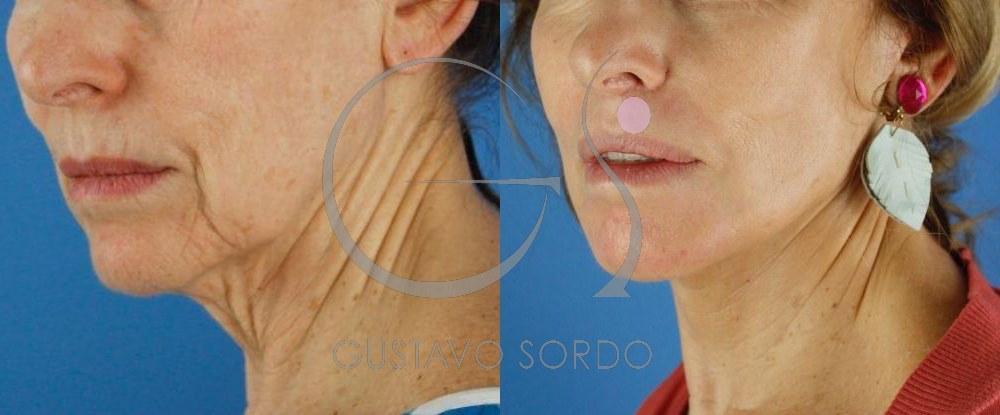Lifting cervicofacial labios dermabrasión.