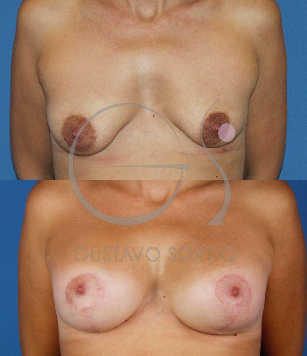 Mastopexia Aumento de mamas T invertida