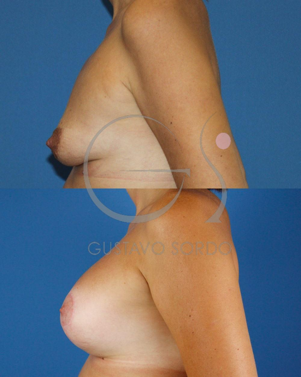 Mastopexia Aumento de mamas T invertida. Perfil izquierdo
