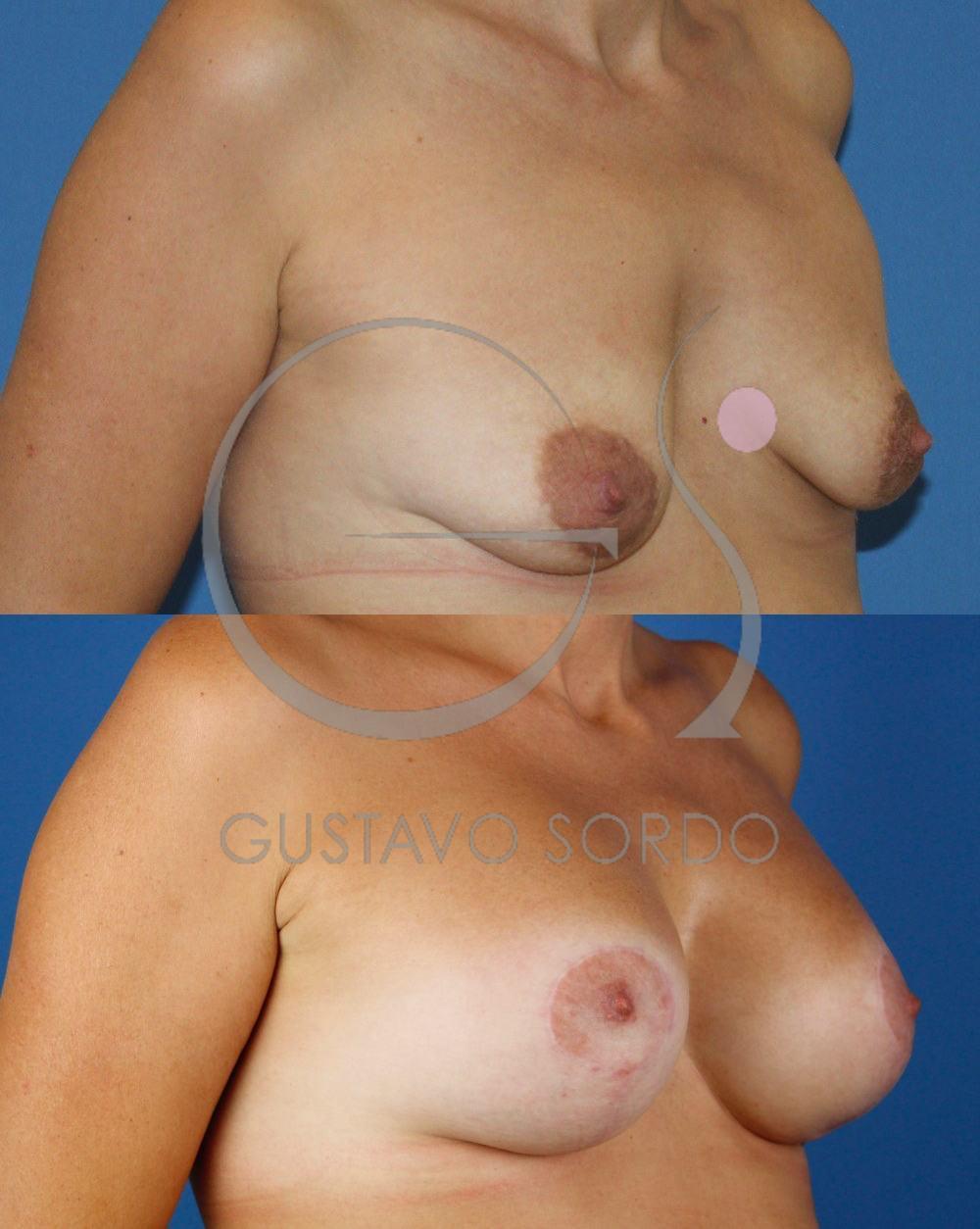 Mastopexia Aumento de mamas T invertida. Semiperfil derecho