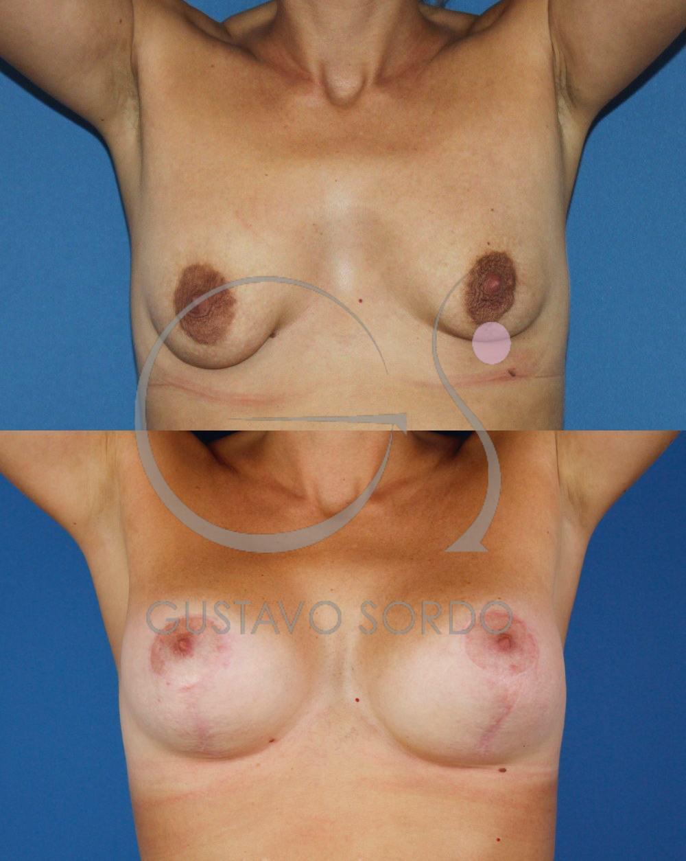 Mastopexia Aumento de mamas T invertida. Vista frontal
