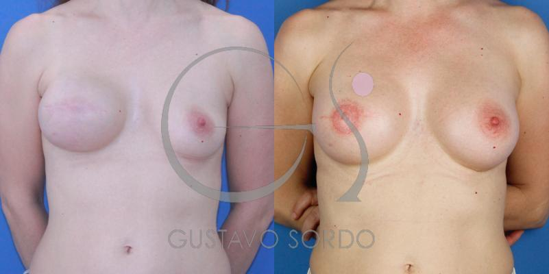 Reconstrucción mamaria después de un cáncer de mama