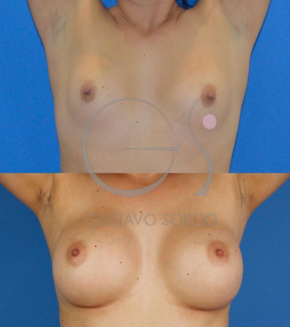 Aumento mamario prótesis anatómicas 295cc. Brazos arriba