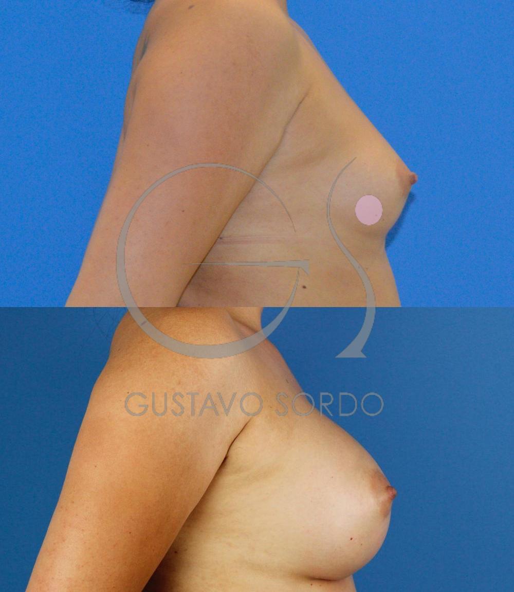 Aumento mamario prótesis anatómicas 295cc. Perfil